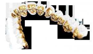 Typodont_1